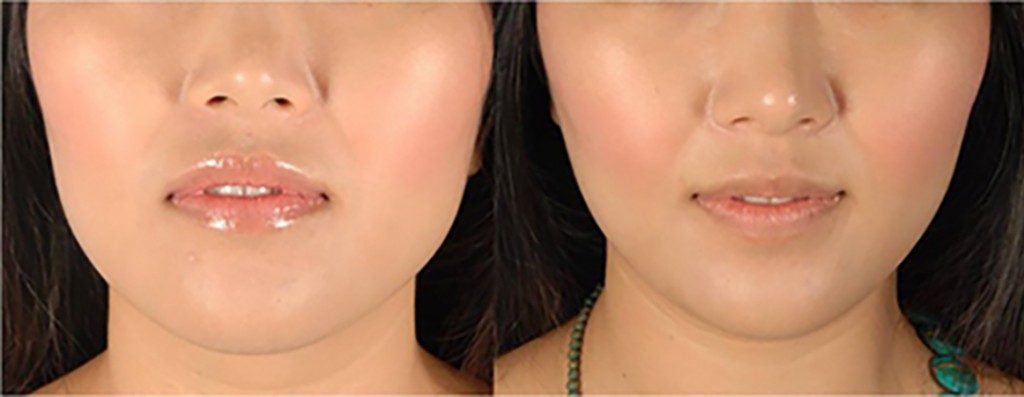 Using Botox for Facial Contouring, Jaw Slimming