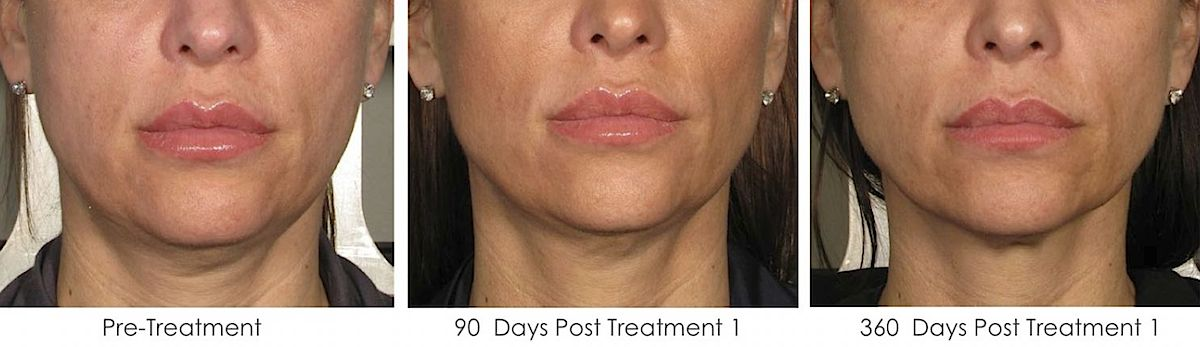 Ultherapy neck treatment before-afters
