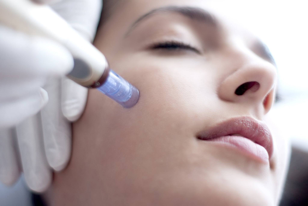 Microneedling, The Gentler Option For Improving Skin Texture