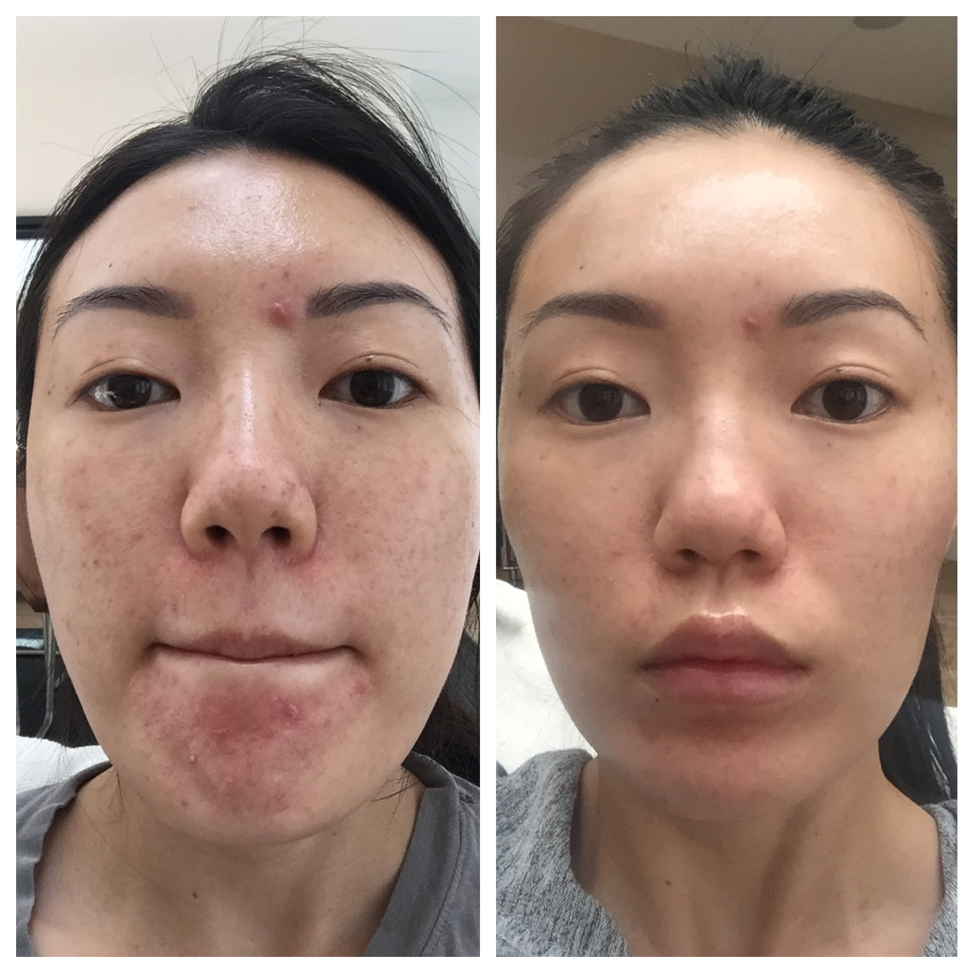 My Peri Dermatitis Skincare Journey
