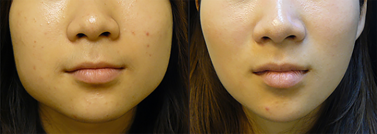 Botox Masseter For Jaw Slimming And Facial Contouring