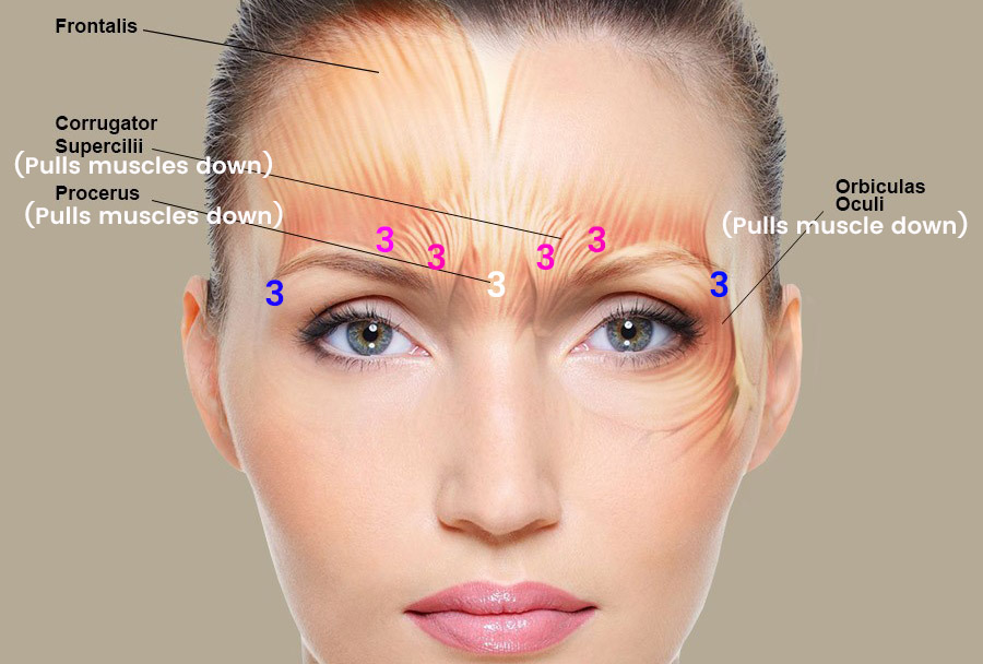 My experience getting botox, preventative botox cost